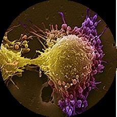 Интердисцпилинарный онкологический центр