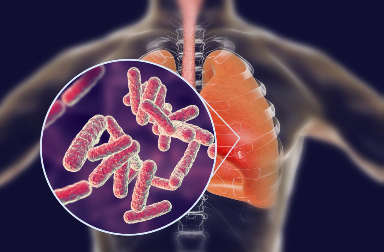 Tervisepooltund_tuberkuloos_regionaalhaigla.jpg